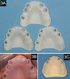 implantimage